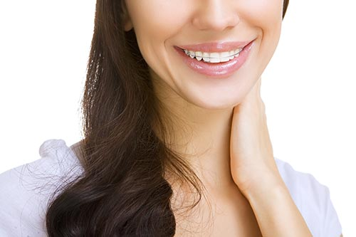 woman-with-straight-teeth-wearing-retainer