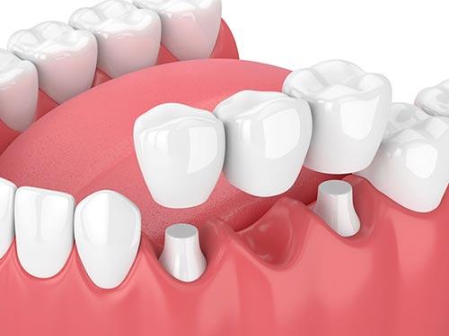 traditional-dental-bridge